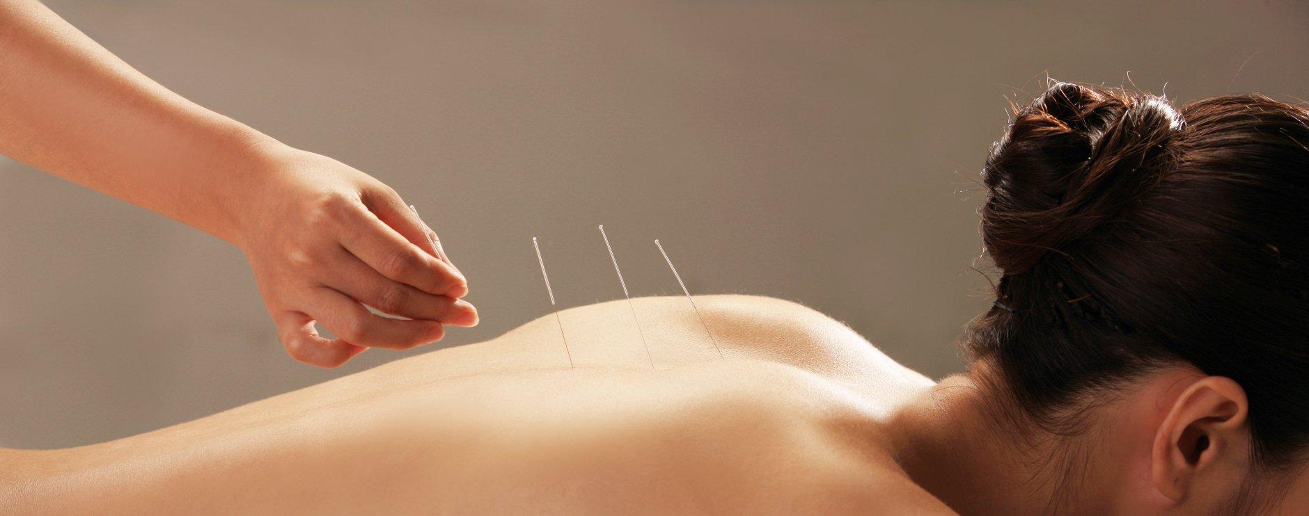Medicina Tradicional Chinesa/Acupunctura